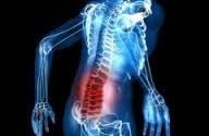 درمان کمر درد با طب سوزنی الکتریکی – الکتروتراپی