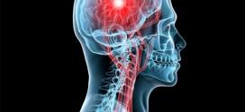 بازتوانی سکته های مغزی با الکتروتراپی و مگنت تراپی